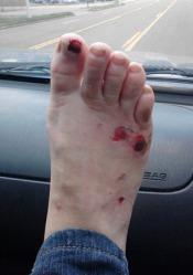 Jaylin's foot